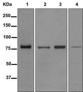 Western blot - Anti-HPS1 antibody [EP8429(2)] (ab174301)