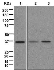 Western blot - Anti-ING2 antibody [EPR4597-5] (ab174305)