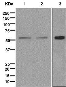 Western blot - Anti-AMHR2 antibody [EPR12225] (ab174311)