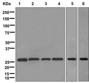 Western blot - Anti-ECHS1 antibody [EPR11785] (ab174312)
