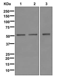 Western blot - Anti-LOX antibody [EPR4025] (ab174316)