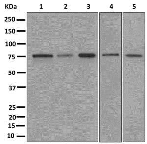 Western blot - Anti-RAVER2 antibody [EPR12601] (ab174321)