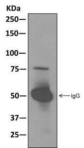 Immunoprecipitation - Anti-RAVER2 antibody [EPR12601] (ab174321)