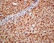 Immunohistochemistry (Formalin/PFA-fixed paraffin-embedded sections) - Anti-RAVER2 antibody [EPR12601] (ab174321)