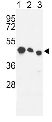 Western blot - Anti-RDH10 antibody (ab174340)