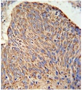 Immunohistochemistry (Formalin/PFA-fixed paraffin-embedded sections) - Anti-CC130 antibody (ab174376)