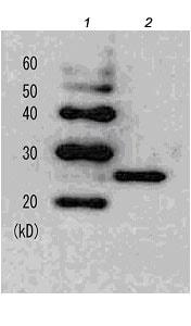 Western blot - Anti-LexA DNA Binding Region antibody (ab174384)