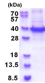 SDS-PAGE - Recombinant Human RBM11 protein (His tag) (denatured) (ab174404)