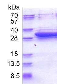 SDS-PAGE - Recombinant Human DCI protein (His tag) (ab174405)