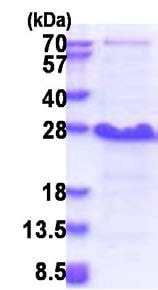 SDS-PAGE - Recombinant Human Ndfip1 protein (His tag) (ab174406)