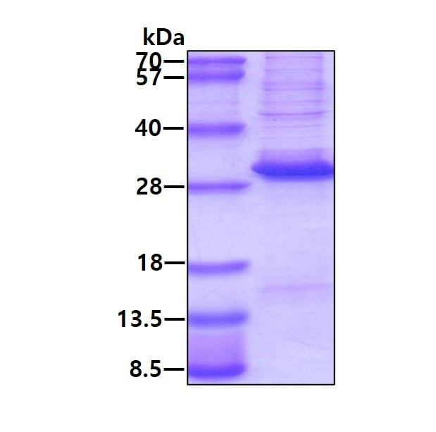 SDS-PAGE - Recombinant Human DLX3 protein (His tag) (denatured) (ab174407)