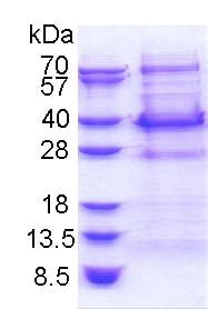 SDS-PAGE - Recombinant Human BCL7C protein (ab174409)