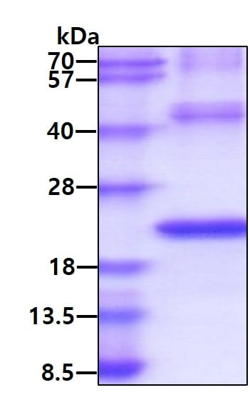 SDS-PAGE - Recombinant Human TREM2 protein (ab174422)