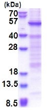 SDS-PAGE - Recombinant Human HSFY1 protein (denatured) (ab174423)