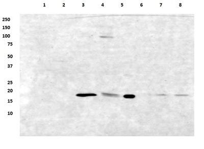 Western blot - Anti-ATP5D antibody [4D11] (ab174438)