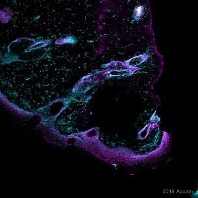Immunohistochemistry (Frozen sections) - Anti-EGFR antibody [EP38Y] - Low endotoxin, Azide free (ab174481)