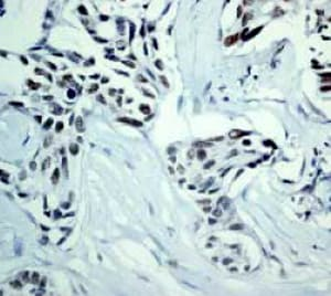 Immunohistochemistry (Formalin/PFA-fixed paraffin-embedded sections) - Anti-DNA PKcs antibody [Y393] - BSA and Azide free (ab174575)