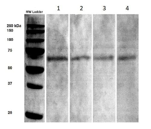 Western blot - Anti-Synaptotagmin VII antibody [N275/14] (ab174633)