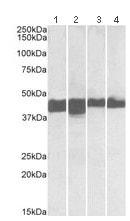 Western blot - Anti-Creatine Kinase MM antibody - N-terminal (ab174635)