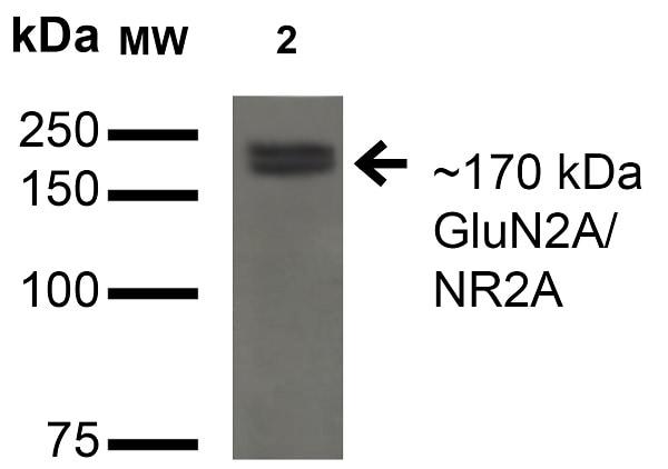 Western blot - Anti-NMDAR2A antibody [N327A/38] - N-terminal (ab174636)