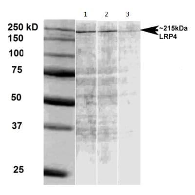 Western blot - Anti-LRP4 antibody [N207/27] - N-terminal (ab174637)