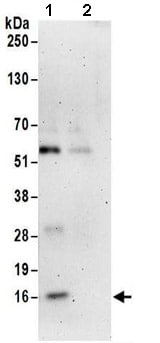 Immunoprecipitation - Anti-NHP2L1 antibody (ab174648)