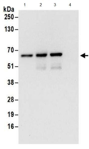 Immunoprecipitation - Anti-ZPR9 antibody (ab174657)