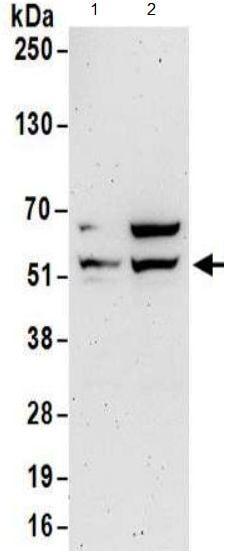 Western blot - Anti-LOC91614 antibody (ab174659)