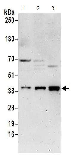 Western blot - Anti-DNTTIP1/TDIF1 antibody (ab174663)