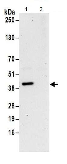 Immunoprecipitation - Anti-DNTTIP1/TDIF1 antibody (ab174663)