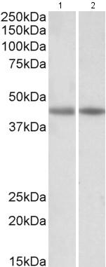 Western blot - Anti-Creatine Kinase MM antibody (ab174672)