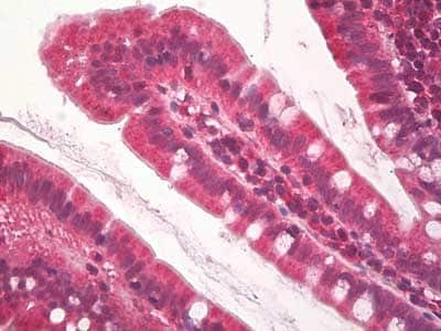 Immunohistochemistry (Formalin/PFA-fixed paraffin-embedded sections) - Anti-KDM2A antibody (ab174693)