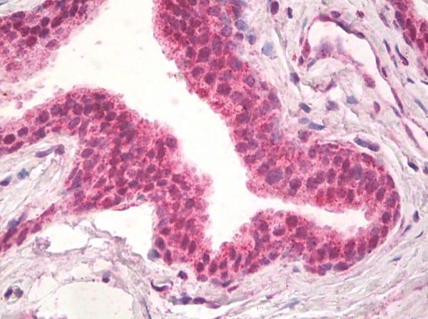 Immunohistochemistry (Formalin/PFA-fixed paraffin-embedded sections) - Anti-Natriuretic Peptide Receptor C antibody - C-terminal (ab174706)