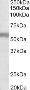 Western blot - Anti-Natriuretic Peptide Receptor C antibody - C-terminal (ab174706)