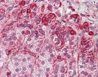 Immunohistochemistry (Formalin/PFA-fixed paraffin-embedded sections) - Anti-RILP antibody (ab174737)