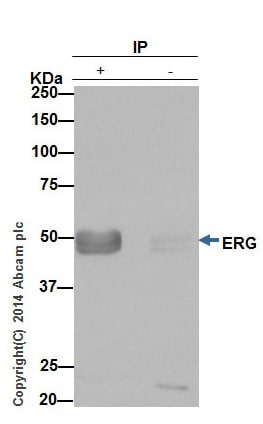 Immunoprecipitation - Anti-ERG antibody [EPR3864(2)] - BSA and Azide free (ab174739)