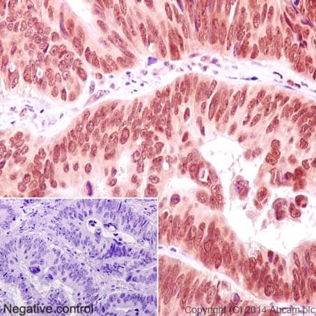 Immunohistochemistry (Formalin/PFA-fixed paraffin-embedded sections) - Anti-ERG antibody [EPR3864(2)] - BSA and Azide free (ab174739)