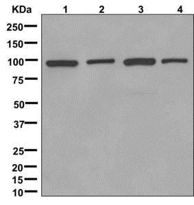 Western blot - Anti-HMGCR antibody [EPR1685(N)] (ab174830)