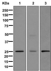 Western blot - Anti-MMAB antibody [EPR8695] (ab174831)