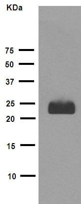Western blot - Anti-FNDC5 antibody [EPR12209] (ab174833)