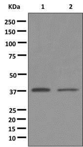 Western blot - Anti-GPCR GPR18 antibody [EPR12359] (ab174835)