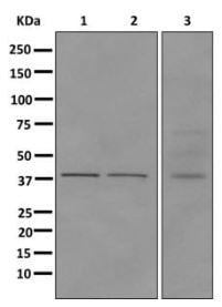Western blot - Anti-HPDL antibody [EPR11691] - C-terminal (ab174841)