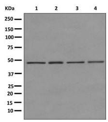Western blot - Anti-AdSS 2 antibody [EPR12331-73] (ab174848)