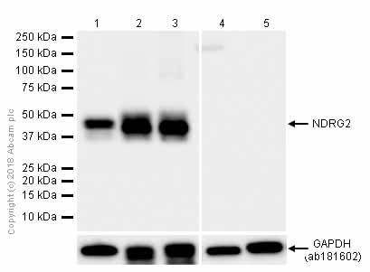 Western blot - Anti-NDRG2 antibody [EPR11910] (ab174850)