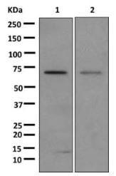 Western blot - Anti-Glypican 3 antibody [EPR10641] (ab174851)