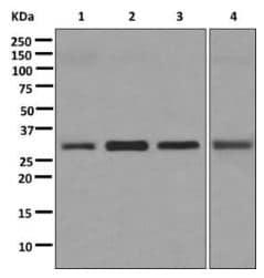 Western blot - Anti-CBR1 antibody [EPR9661(B)] (ab174852)