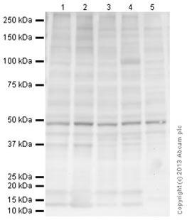 Western blot - Anti-BAF53A antibody [N336B/83] (ab174941)