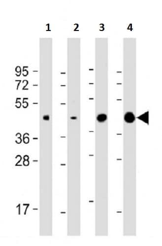 Western blot - Anti-Wnt5a antibody (ab174963)