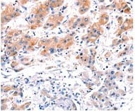 Immunohistochemistry (Formalin/PFA-fixed paraffin-embedded sections) - Anti-CLEC4D antibody (ab175021)