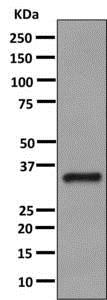Western blot - Anti-HSD11B1 antibody [EPR9407(2)] - BSA and Azide free (ab175049)